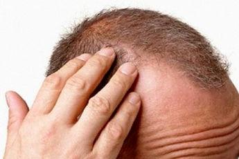 چگونه از پوسته ی سر جلوگیری کنیم؟