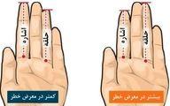 مطالعه طول انگشتان دست برای بررسی خطر ابتلا به سرطان پروستات
