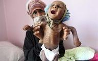 شمار کسانی که در جهان از سوء تغذیه رنج می برند به 820 میلیون نفر میرسد