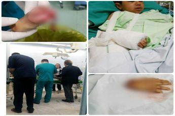 پیوند دست قطعشده کودک زلزلهزده