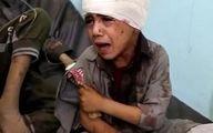 هر 3 ساعت یک غیرنظامی در یمن کشته میشود